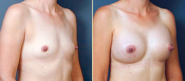Atlanta Breast Augmentation 1