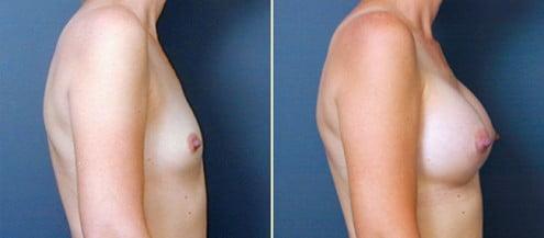 Atlanta Breast Augmentation 1