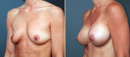 Johns Creek Breast Augmentation 2
