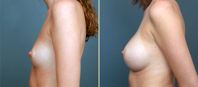 Atlanta Breast Augmentation 3