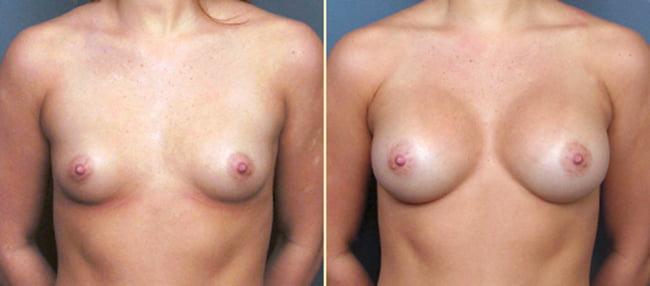 Breast Augmentation Patient 4