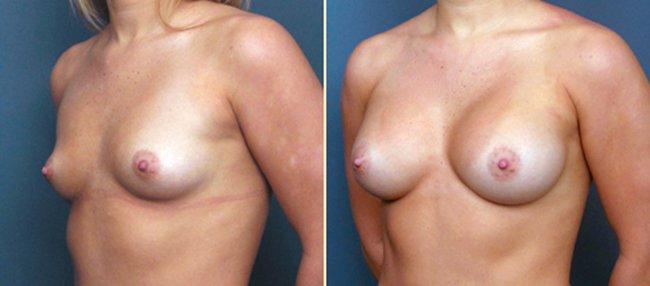 Johns Creek Breast Augmentation 4