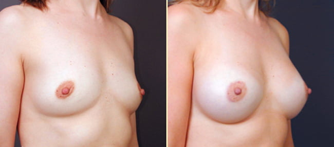 Atlanta Breast Augmentation 5