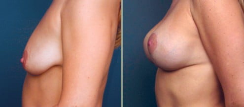 Atlanta Breast lift with Implants 1