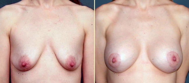 Breast Lift with Implants Patient 2
