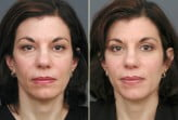 eyelid plastic surgery photos