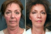 facelift plastic surgery photos