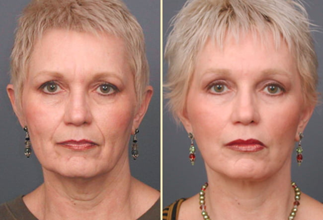 Facelift Patient 2