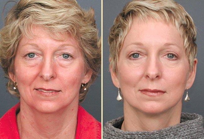 Facelift Patient 3