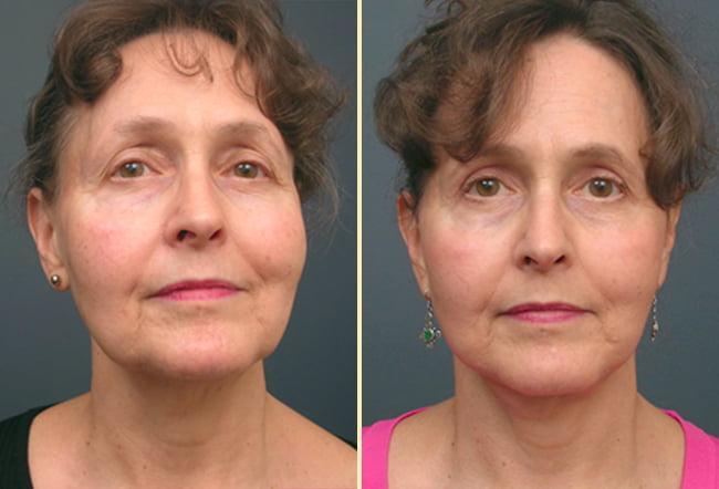 Facelift Patient 4