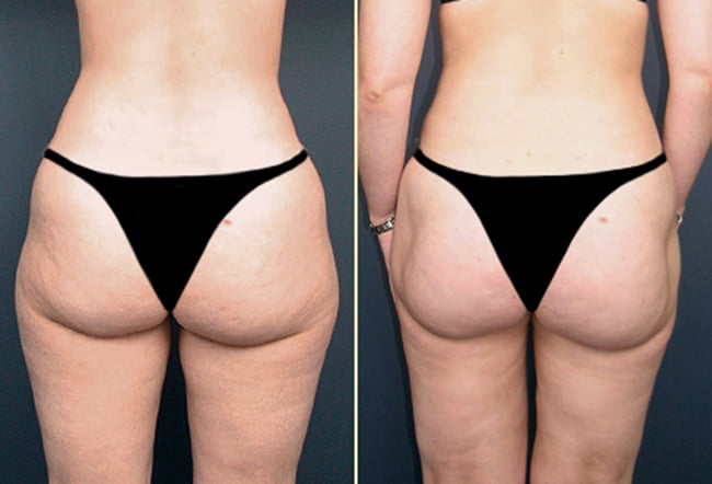 Liposuction Patient 1