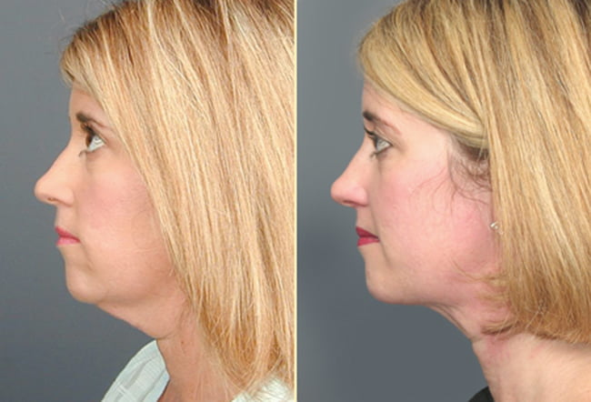 Neck Liposuction Patient 1