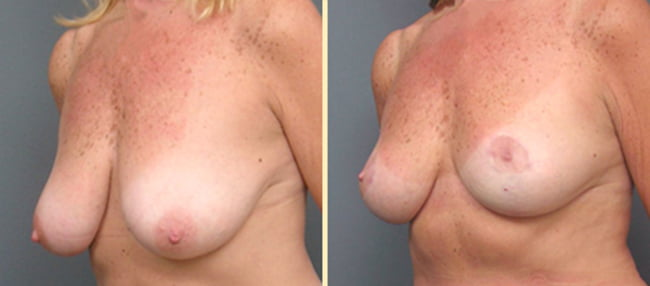 Atlanta Breast Lift 1