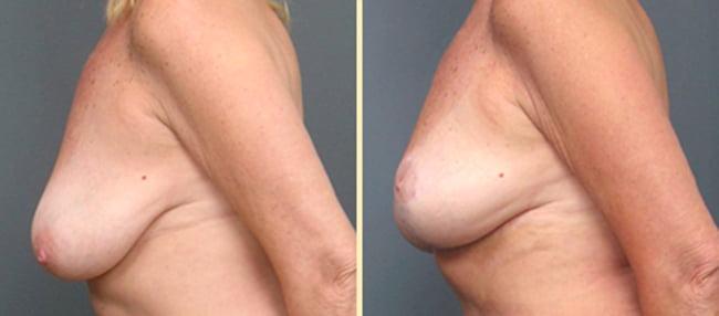 Atlanta Breast Lift 1