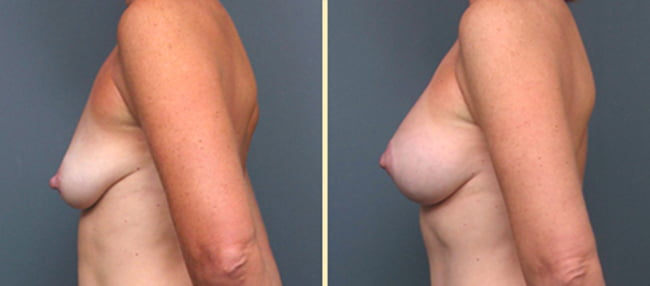 Atlanta Breast lift with Implants 3