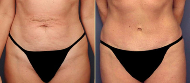 Atlanta Tummy Tuck 1