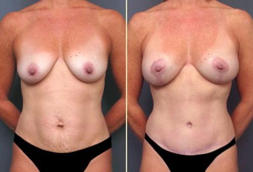 Atlanta Tummy Tuck and Breast Surgery 1