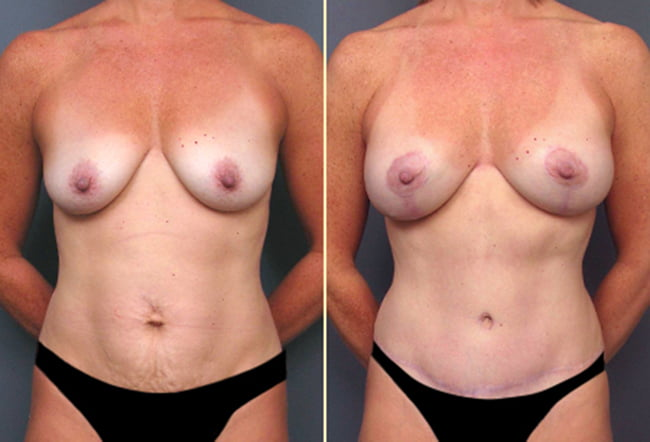 Tummy Tuck & Breast Surgery Patient 1