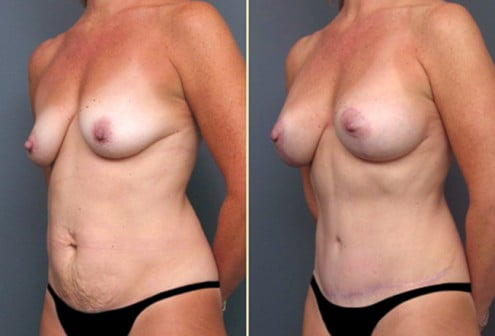 Atlanta Tummy Tuck and Breast Surgery 1