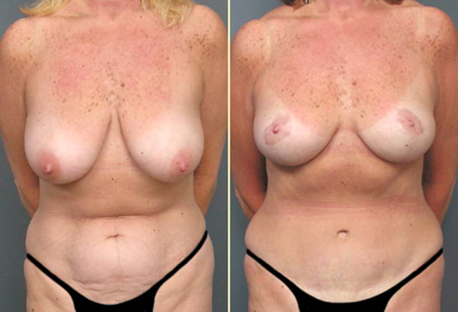 Tummy Tuck & Breast Surgery Patient 2