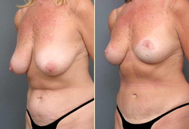 Atlanta Tummy Tuck and Breast Surgery 2