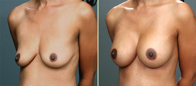 Atlanta Breast Augmentation 6