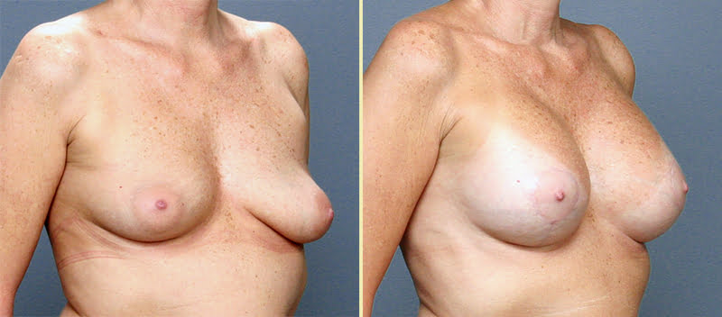 Atlanta Breast Lift with Implants 4
