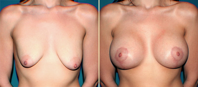 Breast Lift with Implants Patient 5