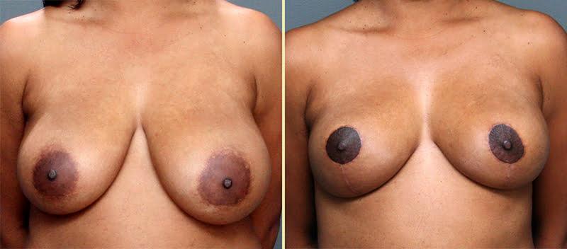 Breast Reduction Patient 1