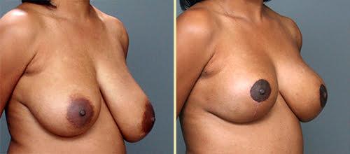 Atlanta Breast Reduction 1