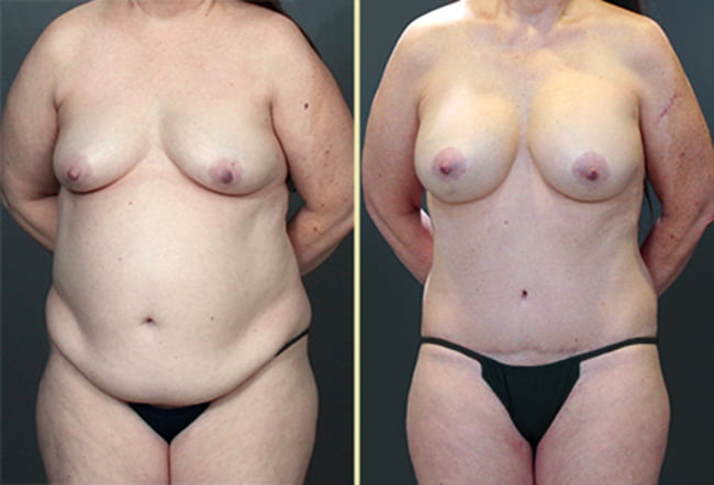 Tummy Tuck & Breast Surgery Patient 3