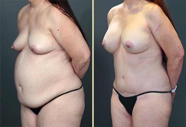 Atlanta Tummy Tuck and Breast Surgery 3