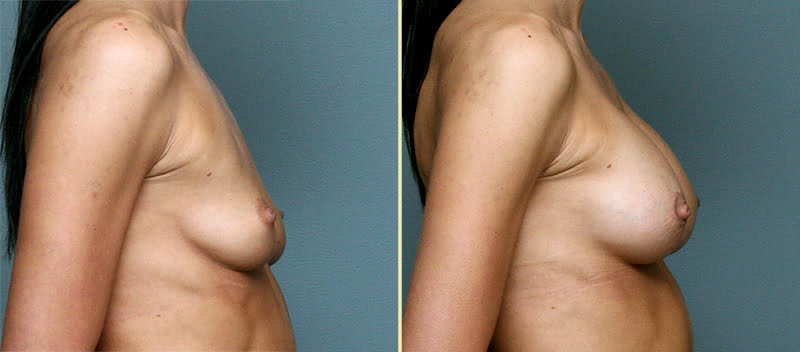 Johns Creek Breast Augmentation 7