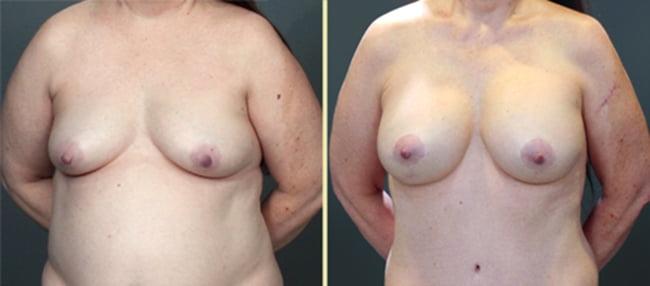 Breast Augmentation Patient 8