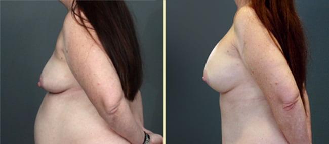 Atlanta Breast Augmentation 8