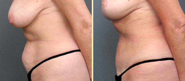 Atlanta Tummy Tuck 4
