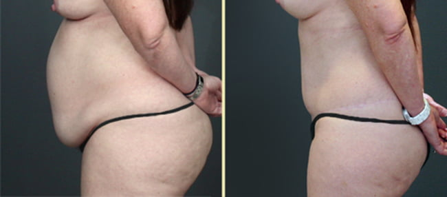 Atlanta Tummy Tuck 5
