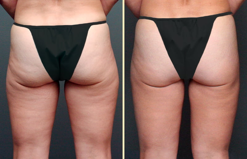 Liposuction Patient 3