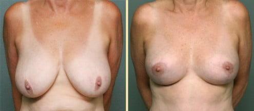Atlanta Breast Lift 2