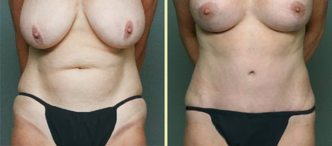 Tummy Tuck Patient 6