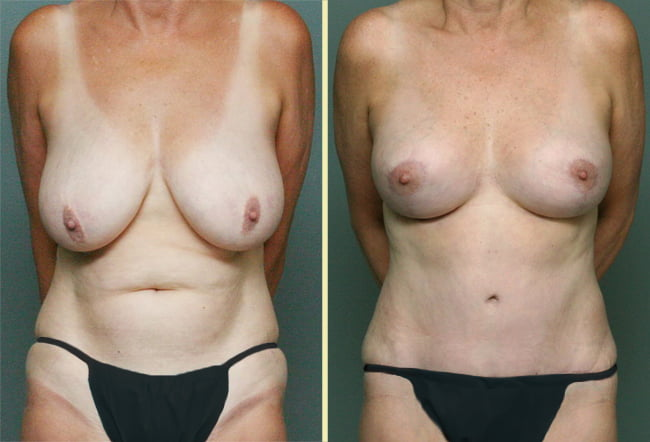 Tummy Tuck & Breast Surgery Patient 4