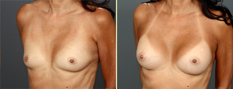 Atlanta Breast Augmentation 12