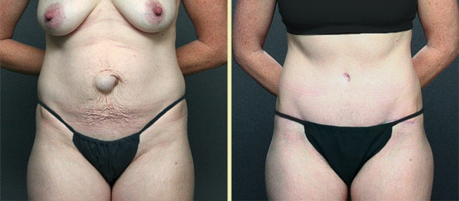 Atlanta Tummy Tuck 7