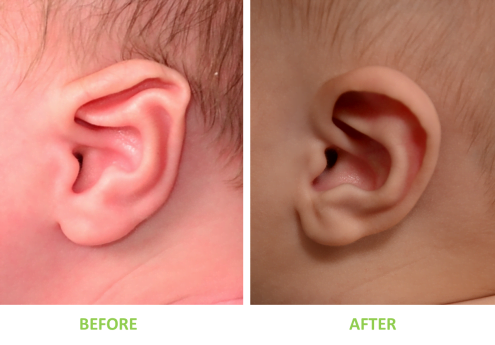 2-month-old boy with Stahl's ear deformity (also known as Spock ear or eflin ear) treated with non-surgical ear correction
