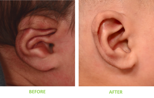 Newborn boy with helical lidding and conchal crus treated with non-surgical ear correction
