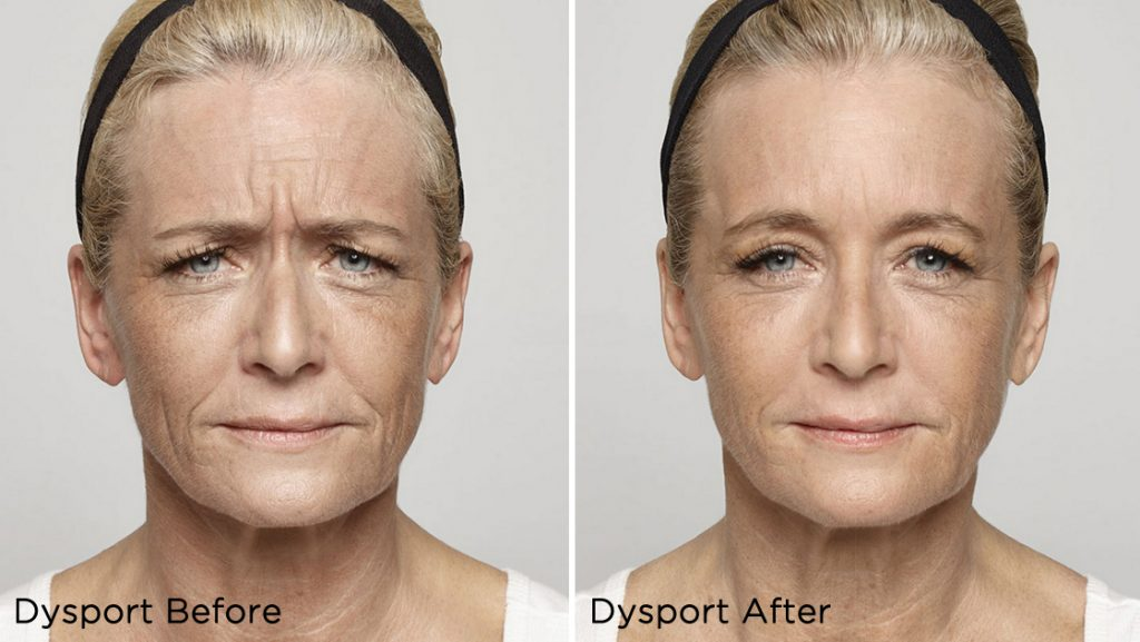Dysport®, the muscle-relaxing medication, is used to treat expression and frown lines