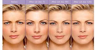 Before and after photos of Botox treatment of the frown lines