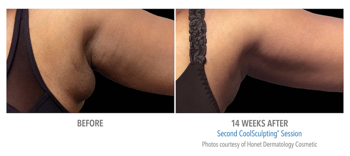 CoolSculpting Treatment Results in Atlanta