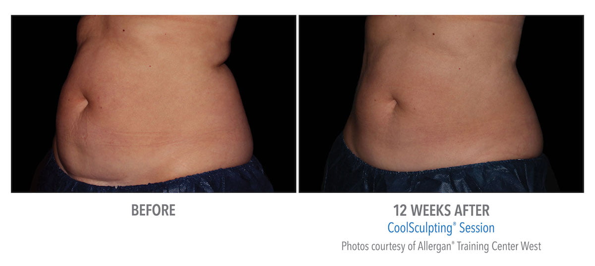 CoolSculpting Before After Photo in Atlanta