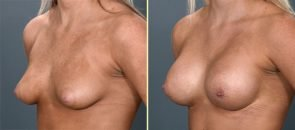breast-augmentation-13b-artisanplasticsurgery
